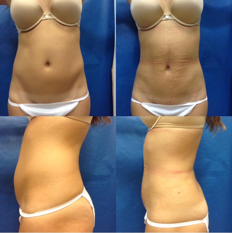 Ultrasound-Fat-Liposuction-VaserLipo-VaserLiposelection-Minimal-Ageless-Beautiful-Medical-Spa-fat-reduction-Contouring